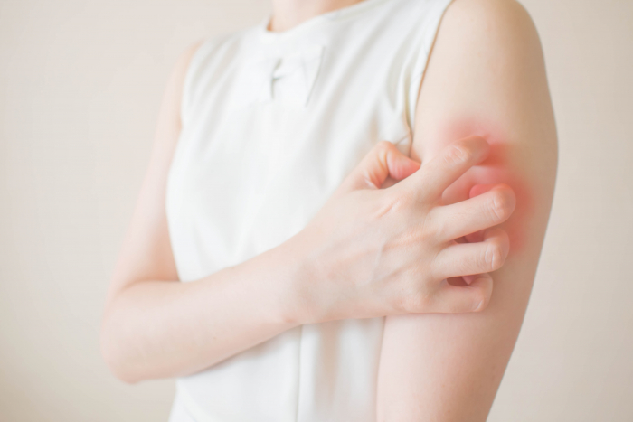 Woman itching her arm which is irritated and red