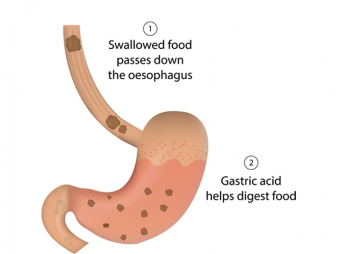 Image of the stomach digesting food