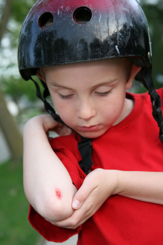Child cut grazed elbow