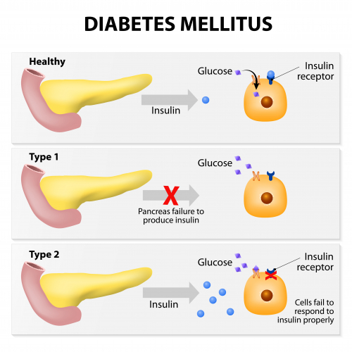 Image of pancreas and insulin effects on glucose