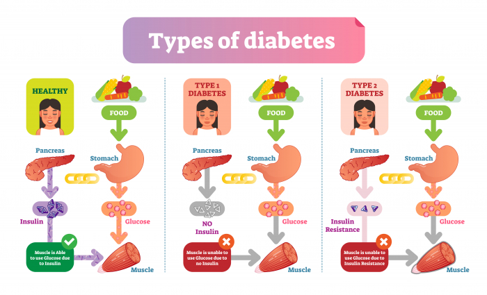 Image of types of diabetes